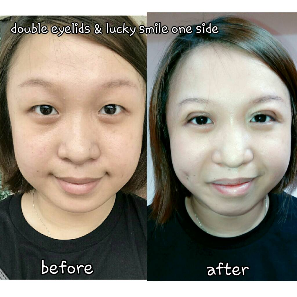 l ::: Lasersurgery Hatyai Skin laser and beauty Lasersurgery